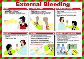 """External bleeding """"first aid"""" series of posters"" sign."